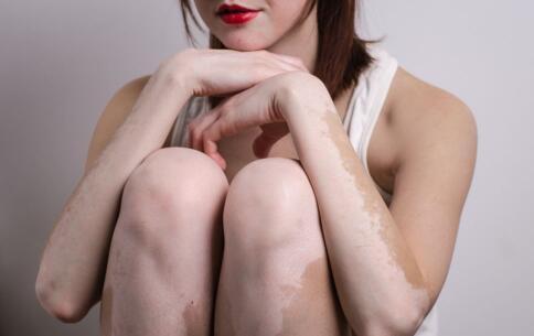 女性白癜风该怎么护理?