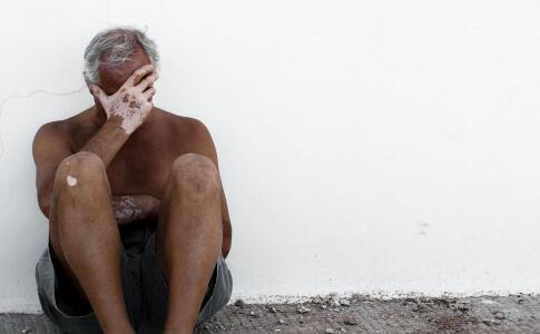 男性白斑患者做什么利于