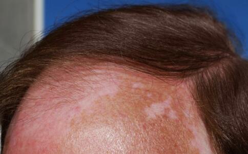 白癜风多发部位