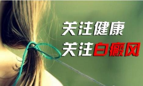 杭州专治白癜风的医院