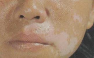 脸部白癜风多长时间能治好呢?